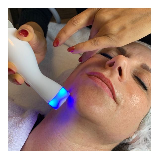 skin lift radiofrequentie